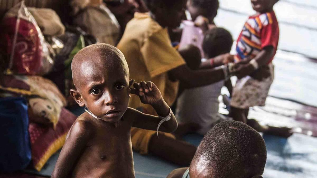 Meski KLB Dicabut, Penderitaan Suku Asmat di Papua Masih Berlanjut